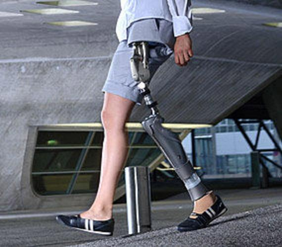 endo exo femur prothesis Yankee medical carries a wide selection of orthotics and prosthetics temporary prosthesis endo & exo prosthesis hip dis-articulation prosthesis.